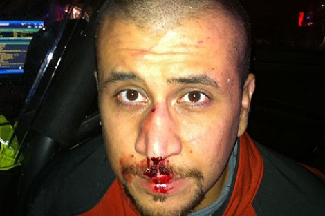 Police photo of George Zimmerman taken the night he killed Trayvon Martin from the State of Florida 9th Supplemental Discovery