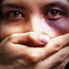 Woman with black eye weeps as a male hand covers her mouth